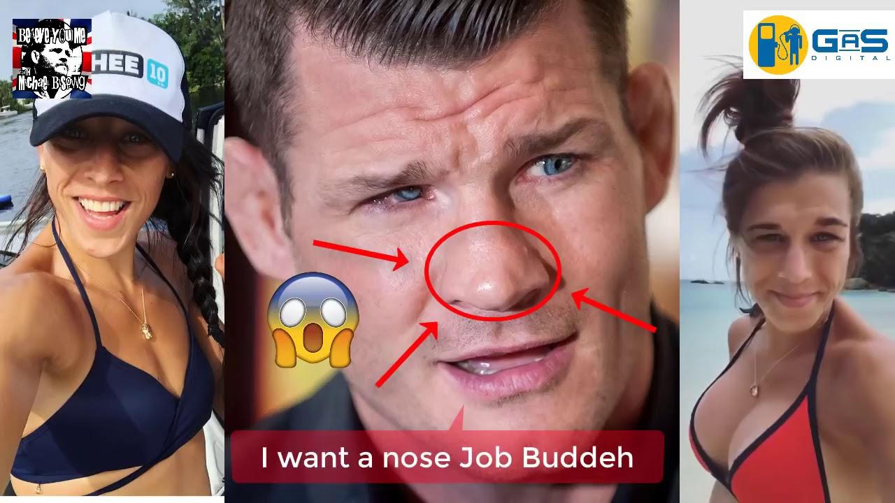 Joanna Jedrzejczyk Boob Job
