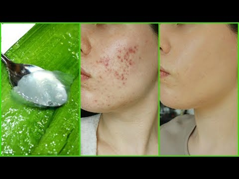 How To Use ALOE VERA On Face for Clear Spotless Skin│How To Exfoliate with ALOE VERA for Smooth Skin