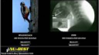 woodpecker 20 hits per second.Live X-ray 30 frames a second