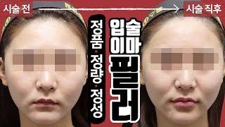 자연스러운 이마 입술필러 시술 영상 톡스앤필 김포점 운…