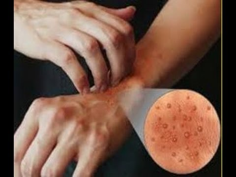 Image result for BE ECZEMA-FREE