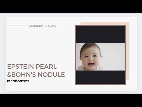 EPSTEIN PEARL & BOHN NODULE