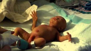 Micro Preemie Silicone Baby Cola in the NICU getting a bath