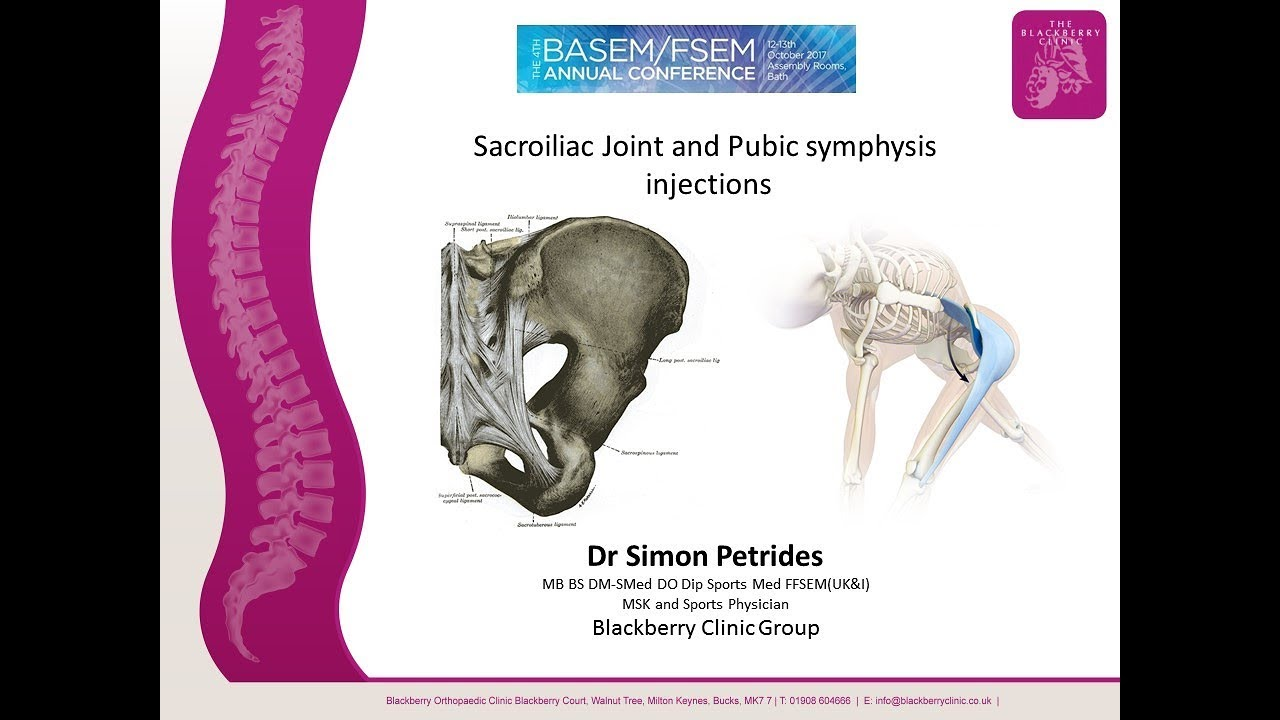 Sacroiliac Joint Injections and prolotherapy. - YouTube