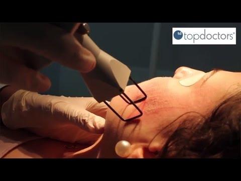 Eliminar las cicatrices de acné con láser