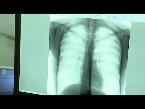 Вспышка пневмонии зафиксирована