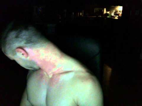 Acute Spasm Attack-Cervical Dystonia