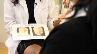 Dr. Carolyn Jacob | Patient Consultation | Sculptra Injections Thumbnail
