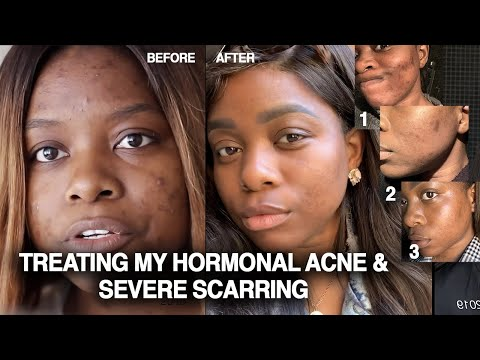 crazy-hormonal-acne-+-hyperpigmentation-treated-without-birth-control-or-accutane-|-my-story
