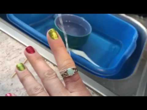 Get Ring Off Swollen Finger Floss