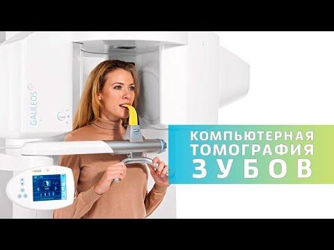 Как проходит 3D компьютерная томография зубов   КТ в стоматологии   Дентал ТВ