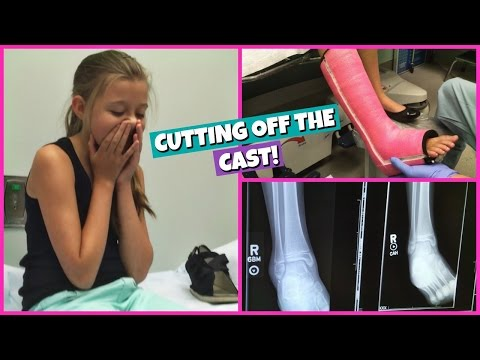 GABRIELLE GETS HER CAST CUT OFF!