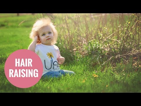 This adorable baby has 'Uncombable Hair Syndrome'