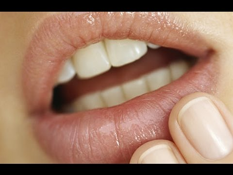 Herpes Cure 2015 [Cure For Herpes] - Natural Herpes Treatment