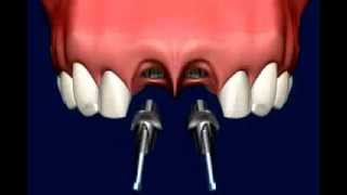 видео альтернатива имплантации зубов