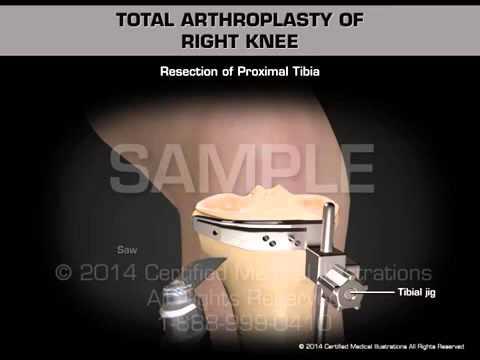 Тотальное эндопротезирование правого коленного сустава