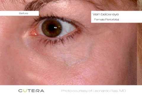 Cutera Laser Vein Removal