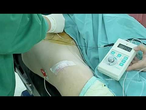 femoral nerve block & sciatic nerve block for tka - youtube, Muscles