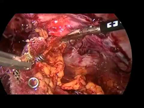 "femoral nerve injury after tep repair ""duck style walking"" - youtube, Muscles"