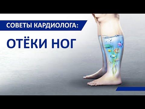 Советы кардиолога Сергиенко: Отёки ног