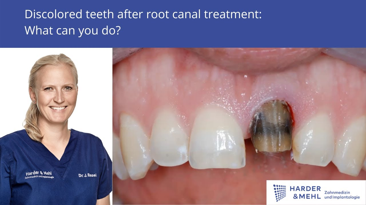 discolored teeth after root canal treatment what can you do