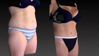 Tummy Tuck 3D Before and After-05