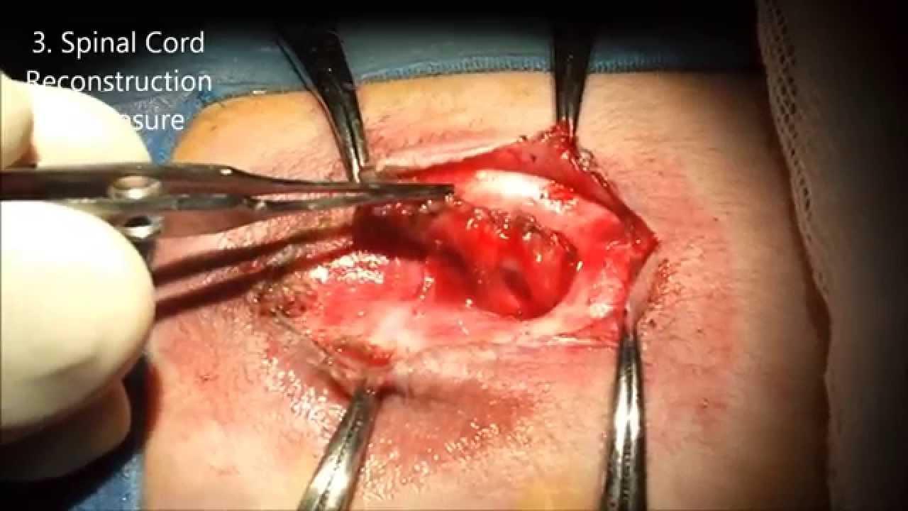 Myelomeningocele Closure - YouTube