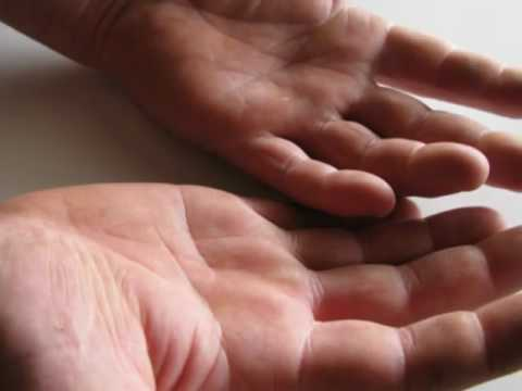 Holly Dunn, Daddy's Hands, Ovarian Cancer