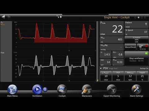 Bellavista™ Ventilator: Automatic Tube Compensation
