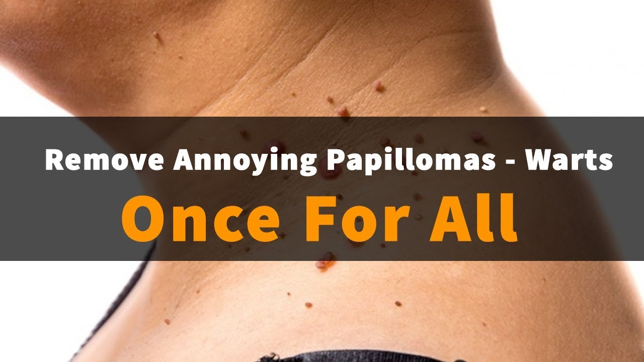 How to get rid of papillomas