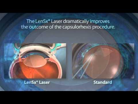 the-alcon-lensx-laser