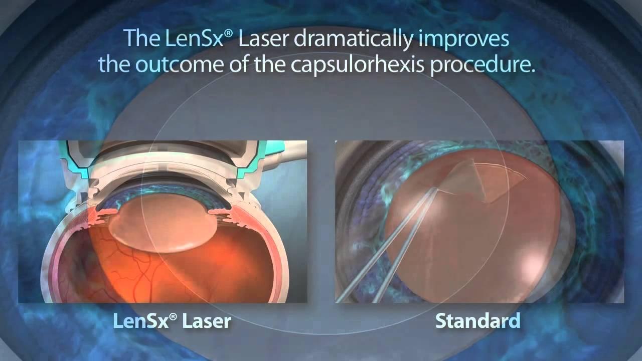 LenSX Laser Surgery 1
