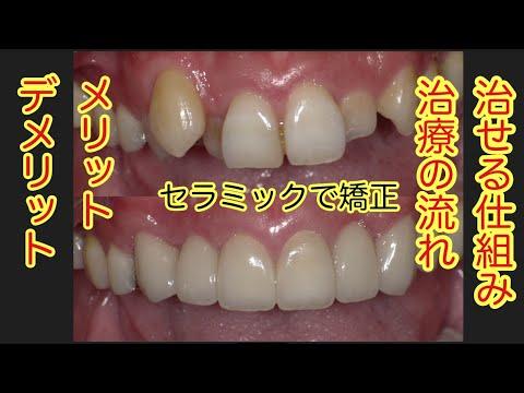 歯並びを早く治す方法 セラミッククラウンによる 歯列矯正