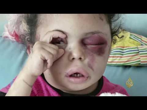 الحصاد- اليمن والتحالف.. المدنيون وقنابل أميركا  - نشر قبل 11 ساعة