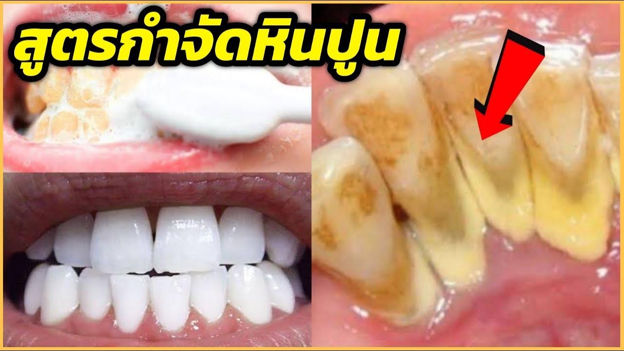 สูตรเด็ด!! ใครอยากกำจัดหินปูน ฟันเหลือง กลิ่นปาก ให้ทำสูตรนี้ ฟันขาวขึ้นทันที l สรรหามาทำ