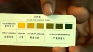 cek tingkat keputihan keputihan berbau dan berwarna