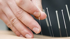 Acupuncture Successfully Treats High Cholesterol