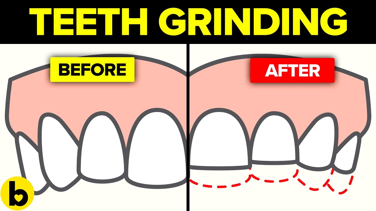 Here's what happens when you Grind your Teeth at Night