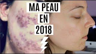 ACNE : Boutons et Cicatrices ✨MA PEAU EN 2018 ✨(Update)