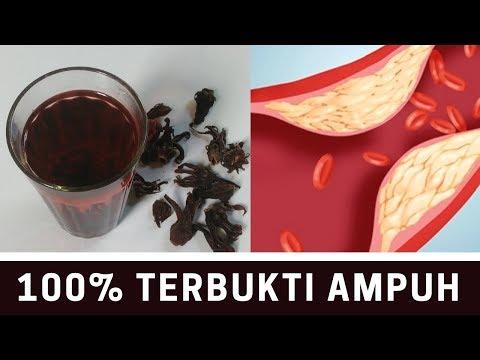 cara-membuat-obat-kolesterol-dan-hipertensi,-100%-terbukti-ampuh-||-sehat-tube