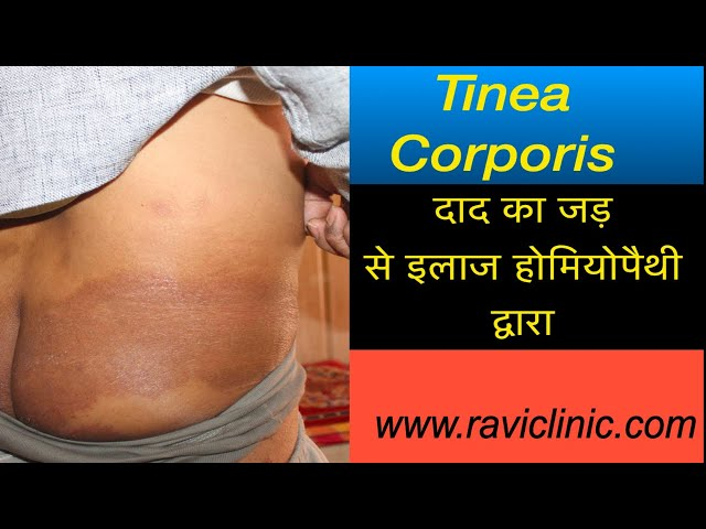 Tinea Corporis Management and Cured Case  with Homeopathy