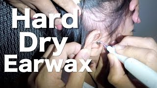 Brave Little Girl's Hard & Dry Earwax Removal