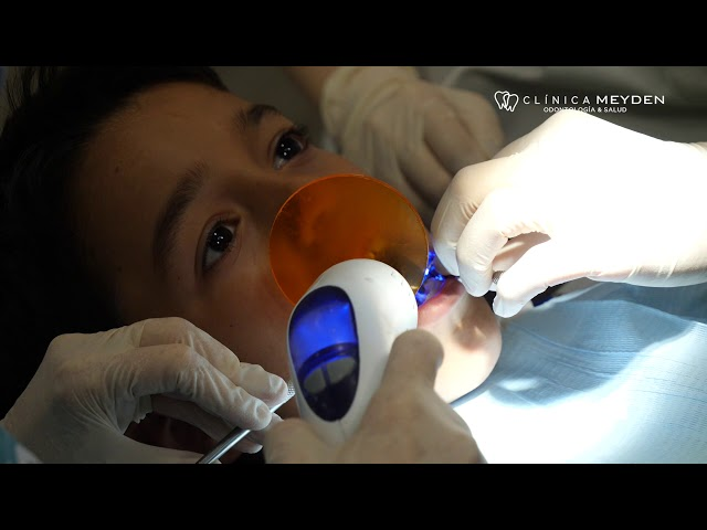 Clínica Meyden - Empaste dental en caries a niño de 10 años realizado por la Dra. Sara Risoto