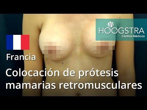 Colocación de prótesis mamarias retromusculares (16032)