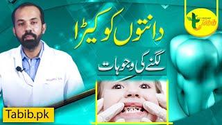 Dental Common Problems Scaling Polishing Teeth Cavity in Urdu by Dr Bilal Tabib pk