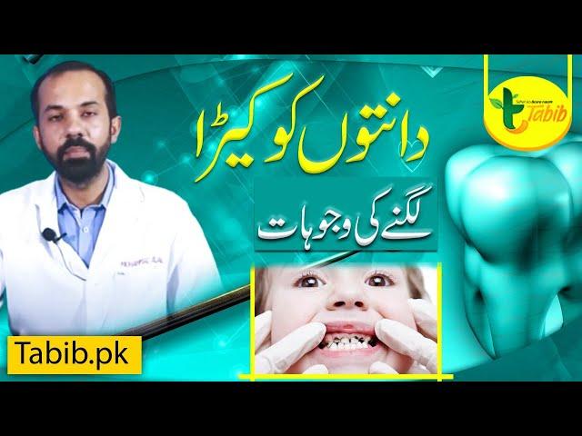 Dental Common Problems, Scaling Polishing, Teeth Cavity in Urdu by Dr Bilal - Tabib.pk