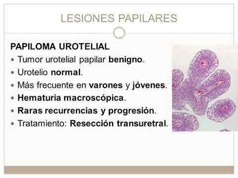 Papiloma urotelial tratamiento, Papiloma humano sin tratamiento - beautyboutiquesalon.ro