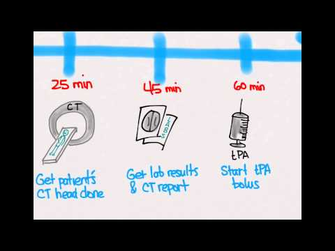 Ischemic Stroke 04: Treatment with tPA