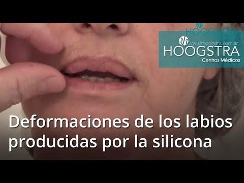 Deformaciones de los labios producidas por la silicona (18014)