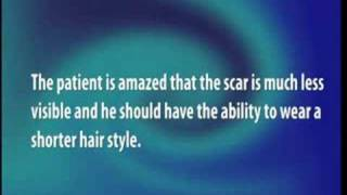 Scar Repair of Strip Hair Transplant by Dr. Cole using CIT - Video